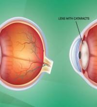 fes-header-cataracts-1